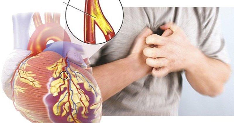 Nguyên nhân dẫn đến chèn tim cấp tính